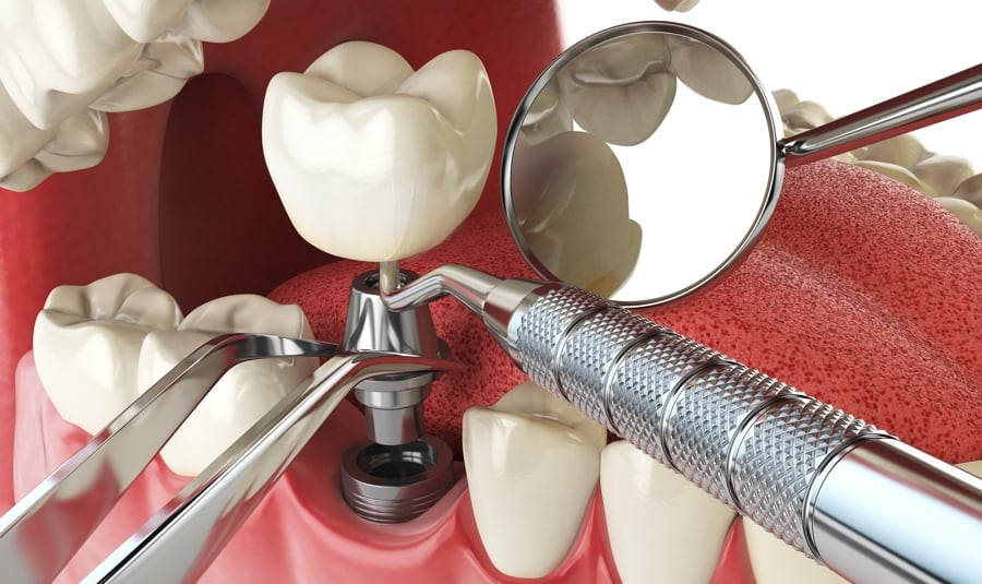 مراحل ایمپلنت های دندانی