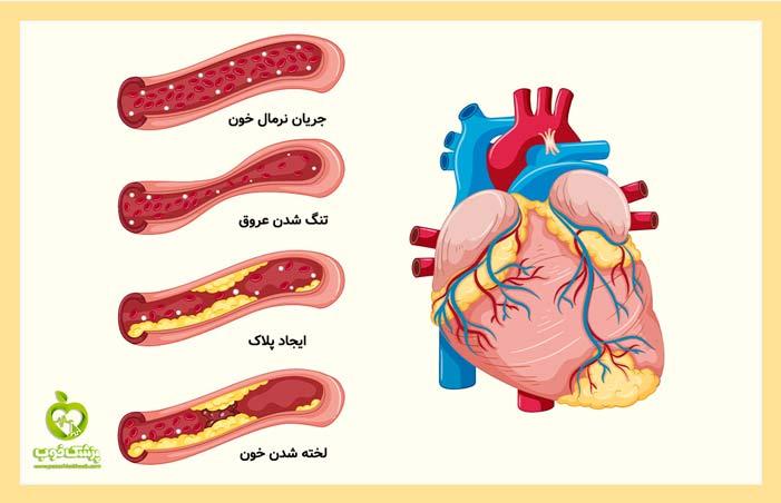 ایجاد رسوب و لخته شدن خون در نارسایی قلبی
